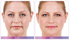 Juvederm Before and After 2
